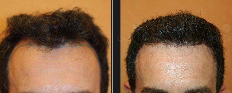 Implantation de cheveux sur le golfe des cheveux