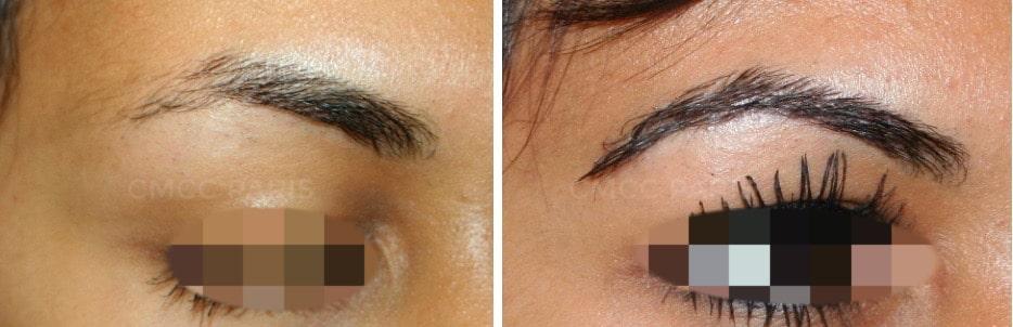 greffe de sourcils - implantation