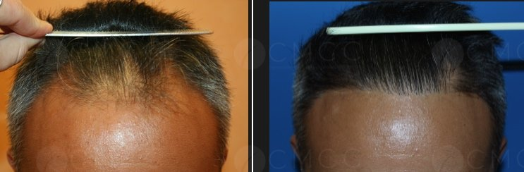greffe de cheveux - implantation